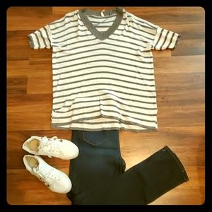 Olive and White Striped Tunic